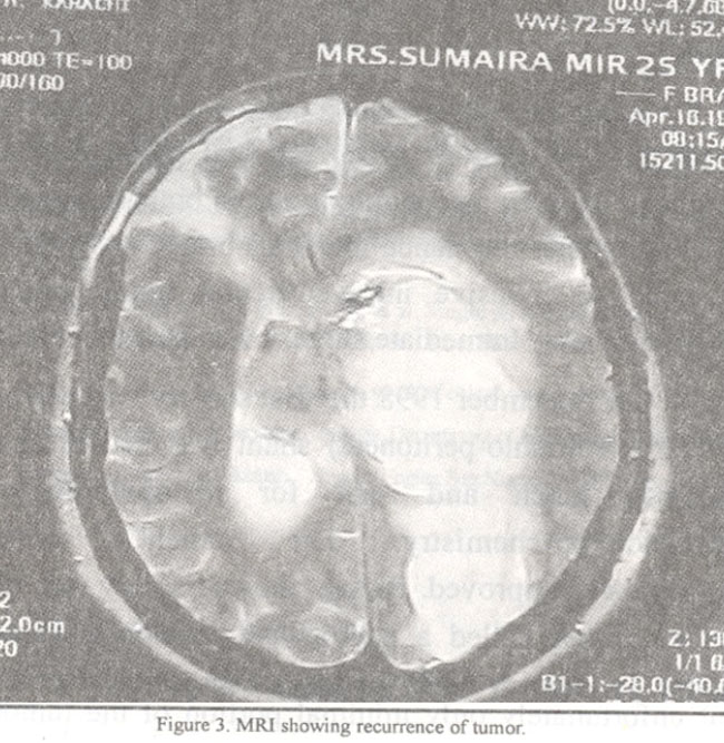 septum pellucidum radiology