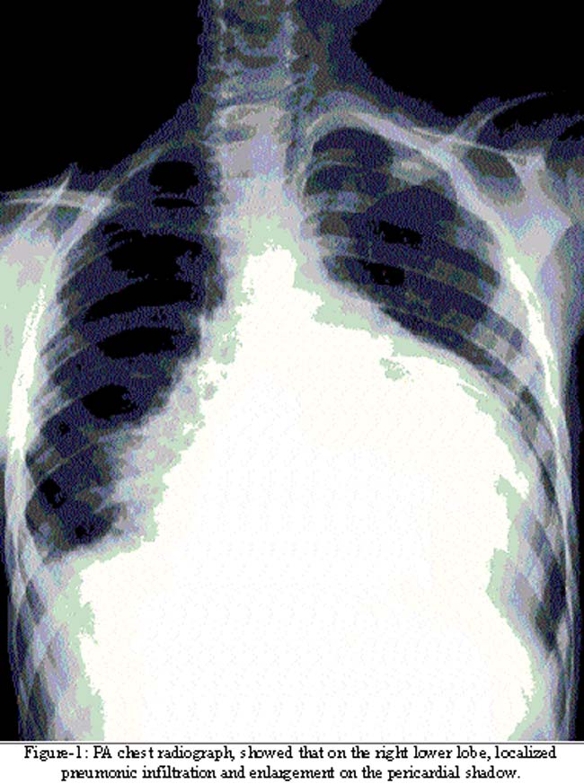 acute cardiac tamponade due to spontaneous bleeding in a child, Skeleton