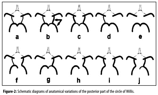 Mra Based Evaluation Of Anatomical Variation Of Circle Of Willis In