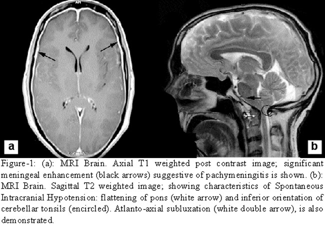 Pathophysiology and management of Spontaneous Intracranial ...