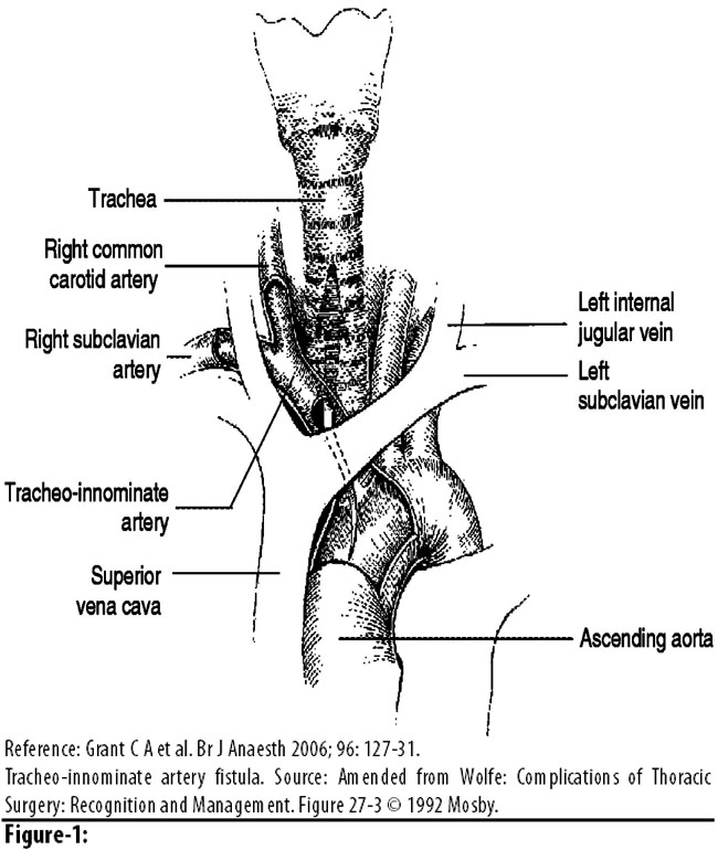 tracheo-innominate fistula formation; a rare complication of, Human Body