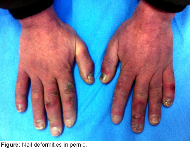 Does pernio cause nail dystrophy?