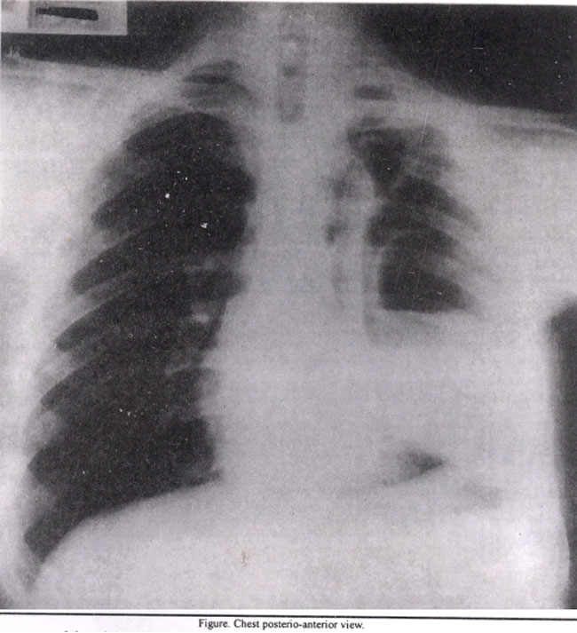 Air Fluid Level On Chest X-ray
