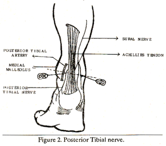 Lateral Malleolus – images free download