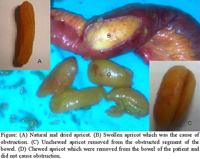 an unusual cause of small bowel obstruction: dried apricots, Skeleton