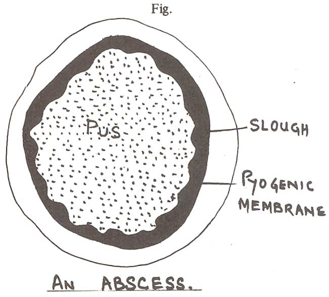 procedure incision and drainage of a superficial abscess