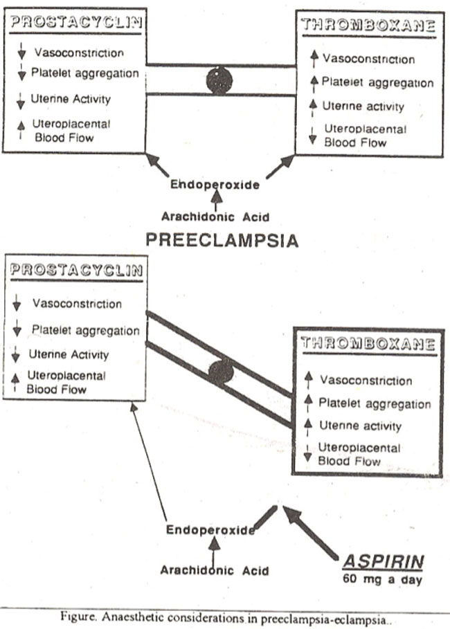 Pregnancy Induced Hypertension - Anaesthetic Considerations
