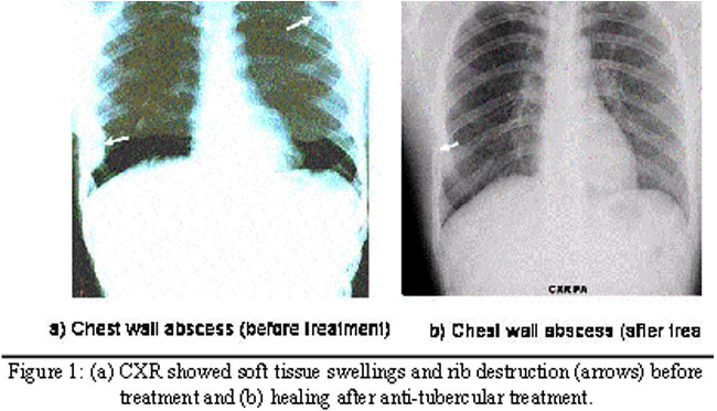 Multiple chest wall tuberculous abscesses