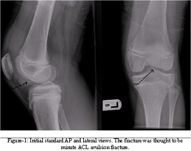 lateral condyle fracture - photo #36