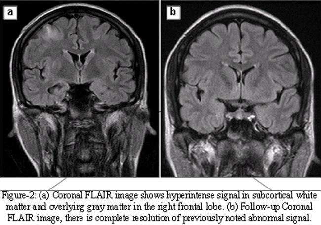 the gallery for gt mri brain abnormal